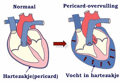 Vocht in het hartezakje (pericard overvulling) kan een dodelijke aandoening zijn